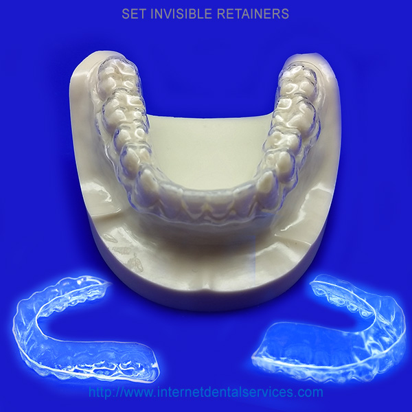 Invisible Retainers – Retainers for Teeth