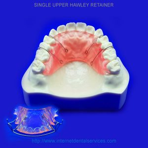 Upper Single Hawley Retainer