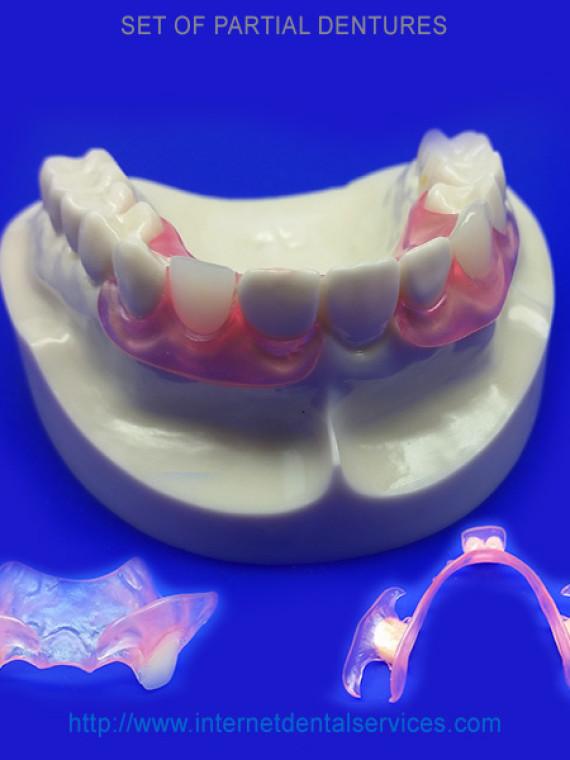 Choose teeth shades for partials and dentures buy partials and choose teeth shades for partials and dentures buy partials and dentures online from home dental solutioingenieria Gallery