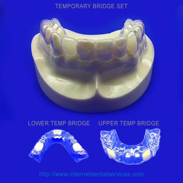 temporary-bridge-set