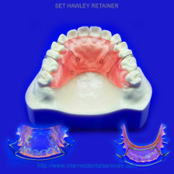 Hawley Retainer - Retainers for Teeth