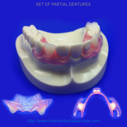 set-partial-dentures