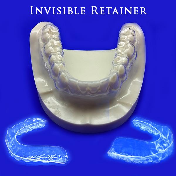 invisible-retainer-1